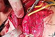 一男子头颈总动脉断裂 泰州市人民医院多科室联合救治