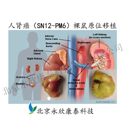 人肾癌(SN12-PM6)裸鼠原位移植模型