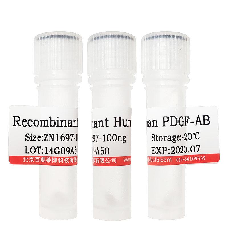 重组SARS-CoV-2 S1蛋白(mFc tag)(>85%)
