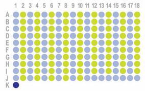 [生存期结肠癌,180点]HColA180Su21 添加 IHC数据CD8和PDL1和PD1