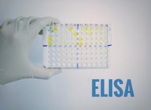 Human IL-6 ELISA kit|人IL-6 ELISA试剂盒