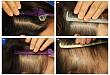 临床回顾:女性型脱发的临床特征