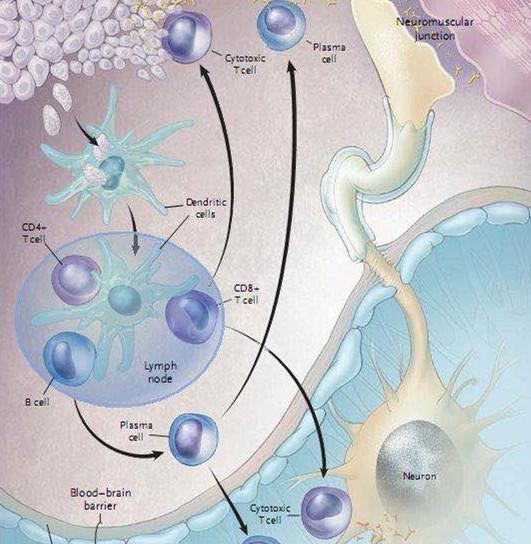 副瘤综合症自身抗体谱( PNS) 14项(自动膜条法)