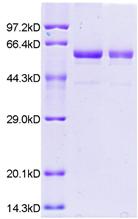 2019新冠病毒N蛋白2019-nCoV Nucleocapsid Protein (NP) (His Tag)