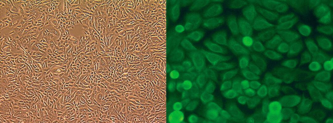 LONZA人原代乳腺上皮细胞 lonza人原代细胞中国一级代理商北京泽平