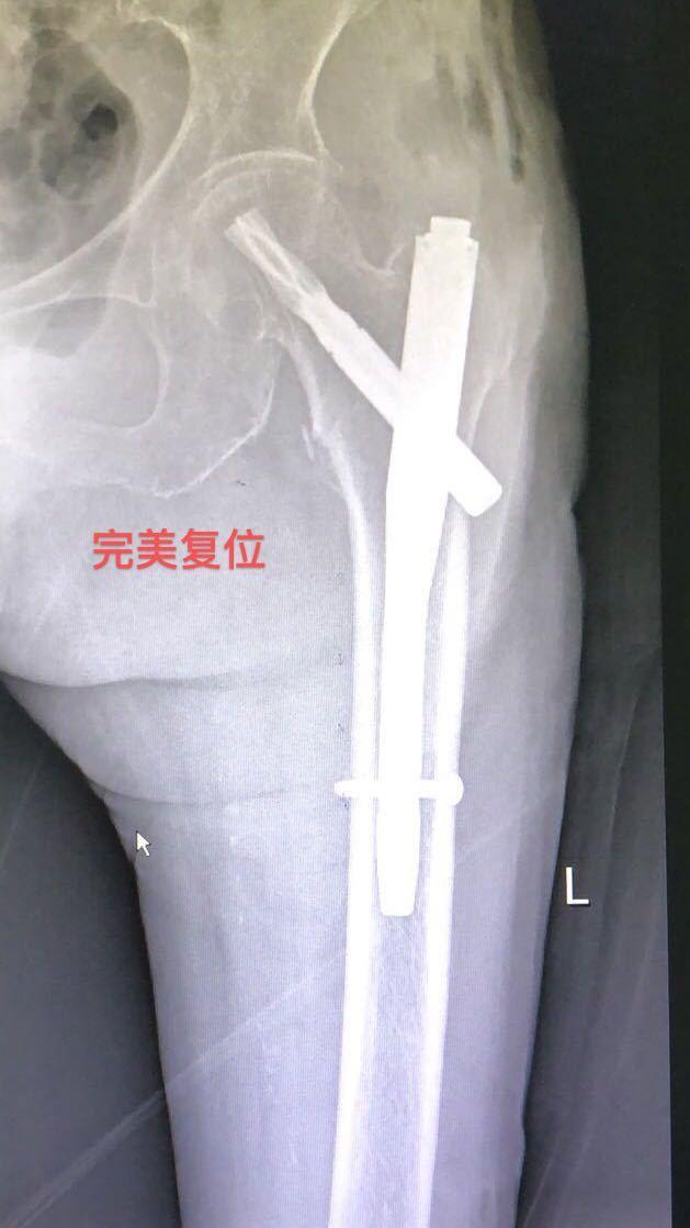 「1+2+3」骨科麻醉科联手助股骨患者快速康复