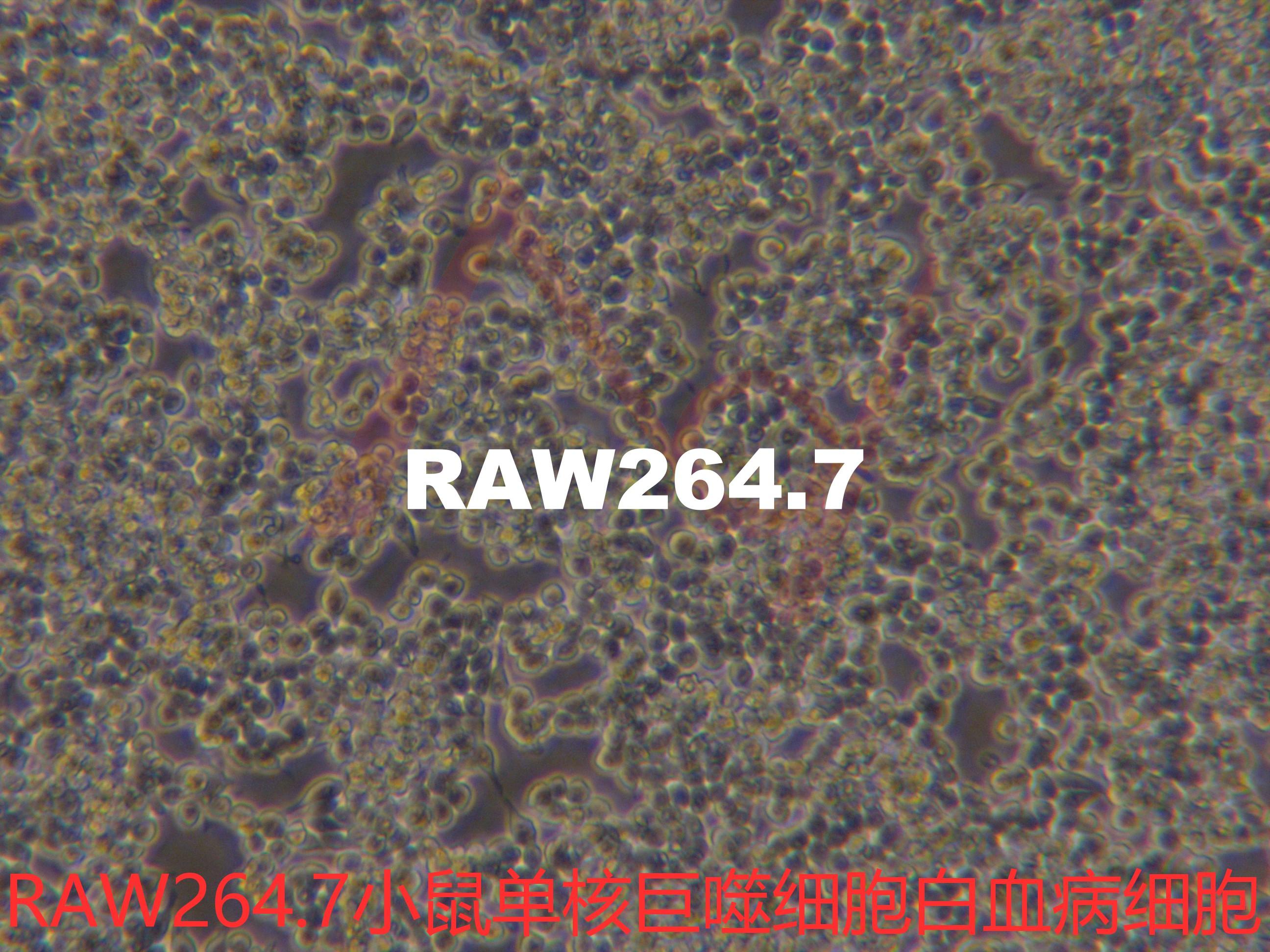 Raw264.7[RAW264; RAW2647; RAW264.7; RAW-264.7; Raw 264.7]小鼠单核巨噬细胞白血病细胞