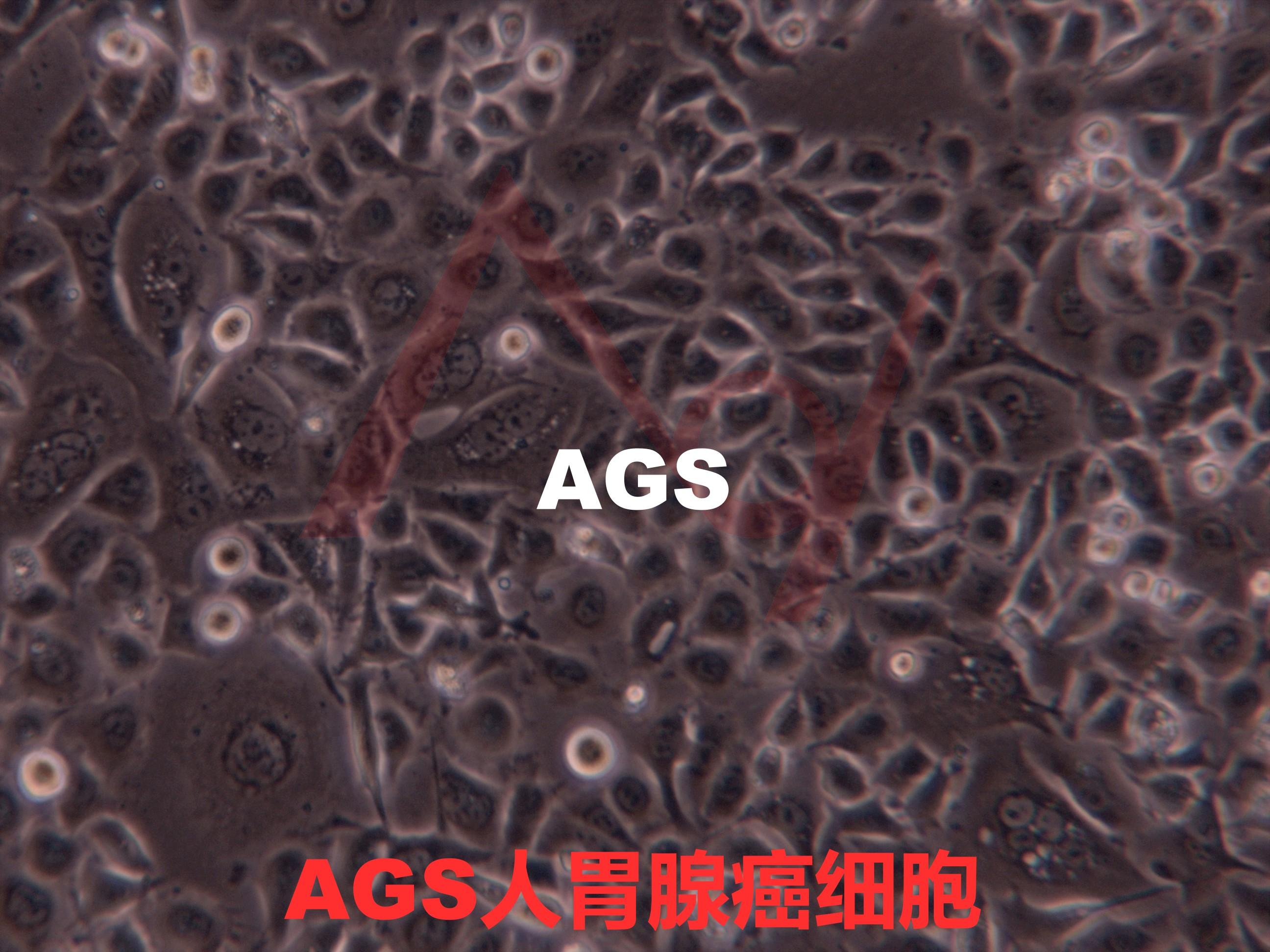 AGS AGS细胞 人胃腺癌细胞