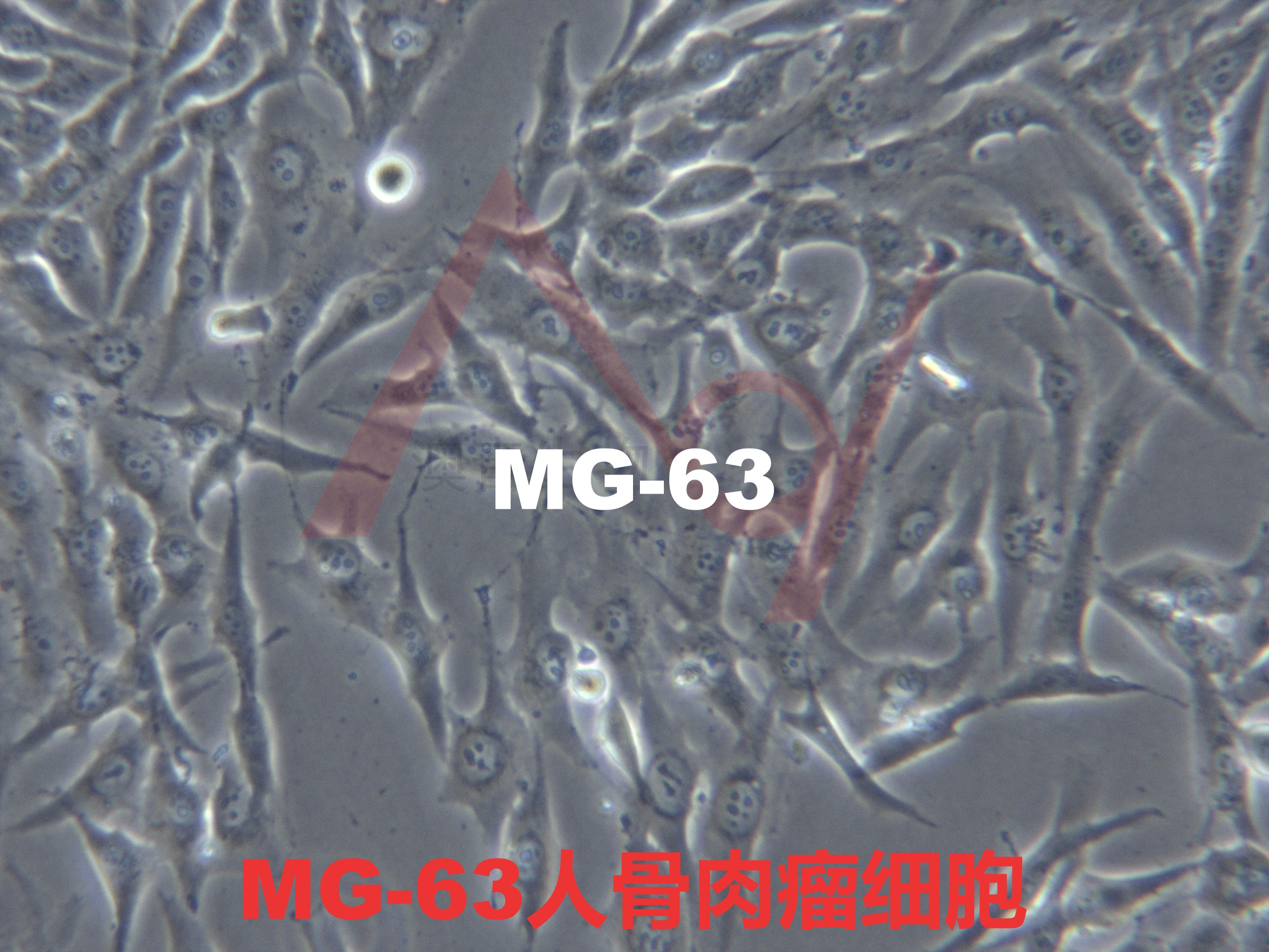 MG-63[M-G63; MG63]人骨肉瘤细胞