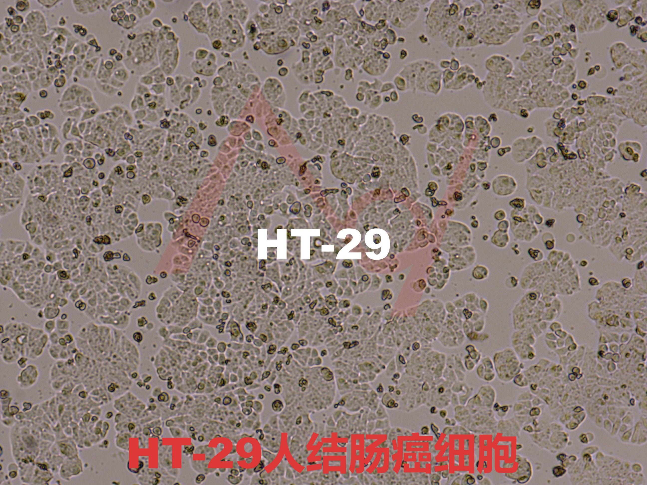 HT-29[HT 29; HT29]人结肠癌细胞