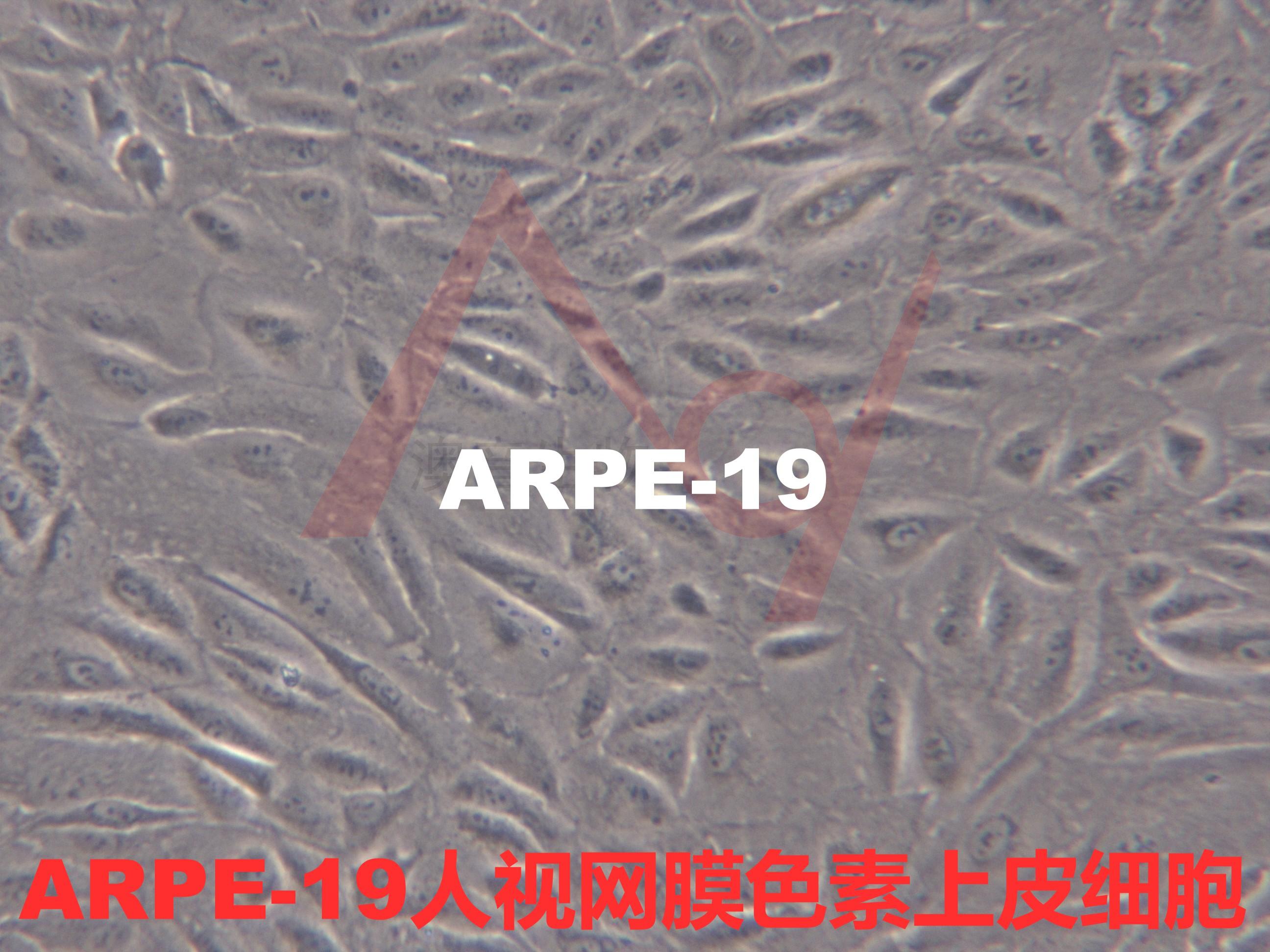 ARPE-19[ARPE19; Adult Retinal Pigment Epithelial cell line-19; NTC-200; NTC200]人视网膜色素上皮细胞