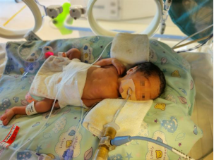 不足 2 斤早产儿疫情里连闯生死关,带白衣姐姐「止哭神药」回家