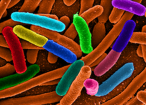 高效大肠杆菌表达体系-上清表达