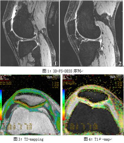 磁共振 3D-FS-DESS 序列联合 T2-mapping 及 T1ρ技术对关节软骨病损的临床应用