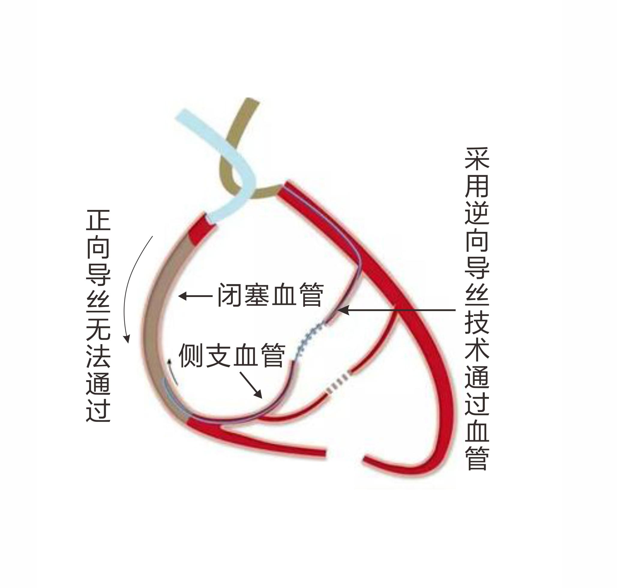 亚心医院成功应用逆向导丝技术治疗冠脉 CTO 病变