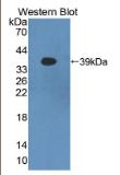 原钙黏素β16(PCDHβ16)多克隆抗体