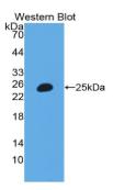 中间α-球蛋白抑制因子H3(ITIH3)多克隆抗体