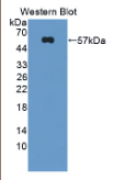奇异不良素(DYSF)多克隆抗体