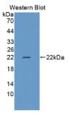 转化受体电位阳离子通道亚家族M成员7(TRPM7)多克隆抗体