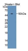蛋白二硫化物异构酶A6(PDIA6)多克隆抗体