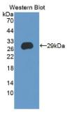 半胱氨酸丰富分泌蛋白3(CRISP3)多克隆抗体