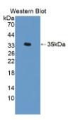 酰基羧酸水解酶(AOAH)多克隆抗体