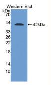 桥粒芯胶粘蛋白2(DSC2)多克隆抗体