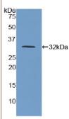 脊髓灰质炎病毒受体(PVR)多克隆抗体