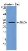 RNA结合基元蛋白38(RBM38)多克隆抗体