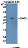 甲基CpG结合蛋白2(MECP2)多克隆抗体