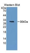 DNA激活蛋白激酶催化亚基肽(PRKDC)多克隆抗体