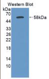 糜蛋白酶原B2(CTRB2)多克隆抗体