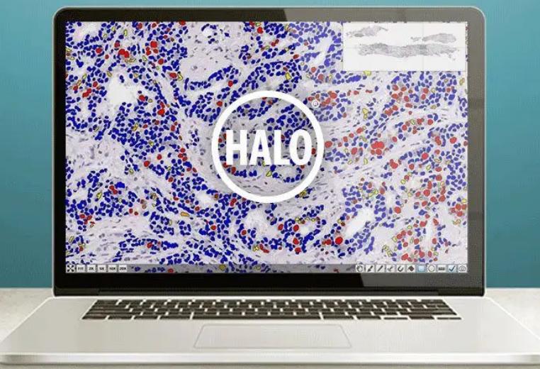 HALO病理定量分析在分子病理的应用
