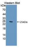 琥珀酸脱氢酶复合体B亚基(SDHB)多克隆抗体
