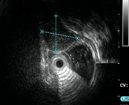 经内镜下隧道黏膜下肿瘤切除术(STER)