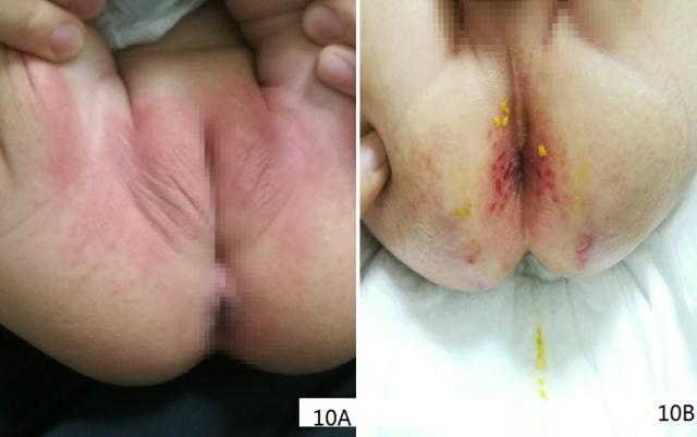 尿布皮炎Q_20200603223426.png