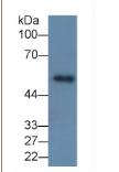 基质金属蛋白酶8(MMP8)单克隆抗体