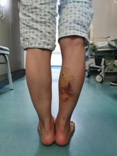 少女打瘦腿针求美 ,不料数月后双腿长短不一