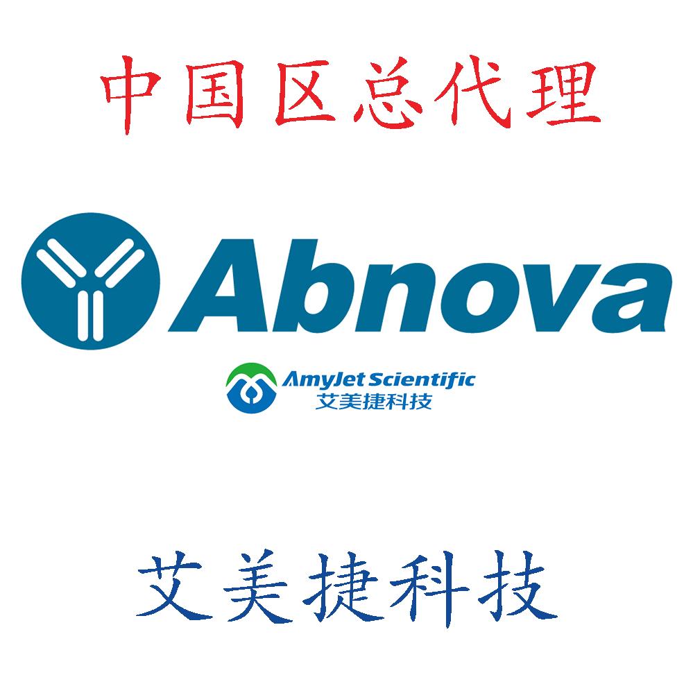 抗体纯化试剂盒/抗体纯化试剂盒/抗体纯化试剂盒