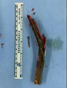男子被 14 厘米树枝折弯穿颈而入 广西医科大学第一附属医院多学科团队接力成功救治