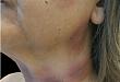 诺氟沙星所致固定性药疹 1 例