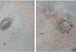 病例挑战:胸部无症状灰绿色结节