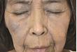 栀子的不良反应,皮肤科医师需知晓