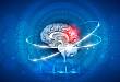 脑室外引流——术后长期预防使用抗菌药物吗?