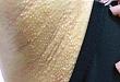 腋窝多发丘疹,竟为激光脱毛副作用