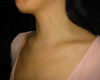腔镜经胸前入路颈部无疤痕甲状腺手术后颈部无痕.png