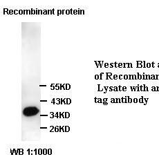 His tag Antibody