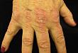 一文读懂:皮肌炎诊治进展