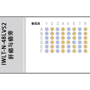 IWLT-N-48LV52 肝癌及癌旁带生存随访组织芯片