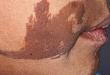 今日病例:线样疣状表皮痣累及口腔